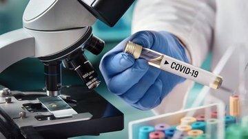 Son 24 saatte 5 bin 277 kişinin Kovid-19 testi pozitif çıktı